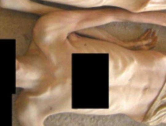 Shocking: This picture is one of 55,000 taken by a Syrian military police defector showing emaciated corpses which investigators say are evidence of extreme torture by Assads regime. Photographs: The Report